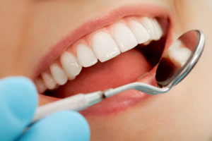 ordnet tænderne